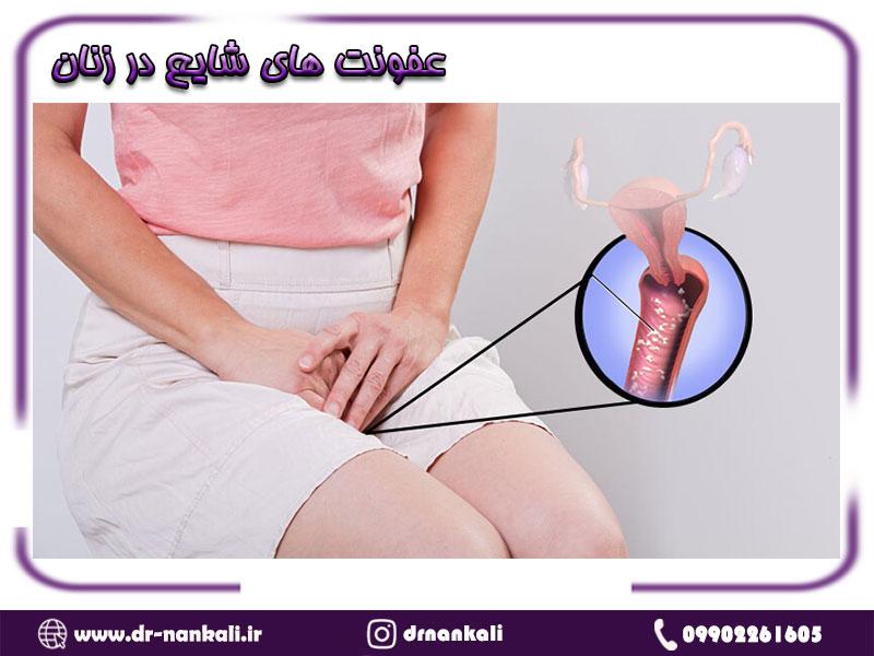 عفونت های شایع در زنان