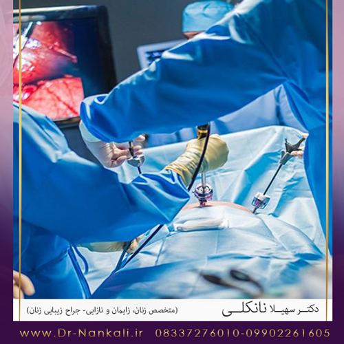 جراحی لاپاراسکوپی کیست تخمدان